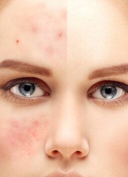 Can Juicing Help with Acne Featured
