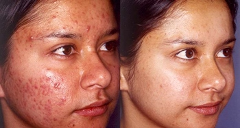 How is Acne Treated and Cured